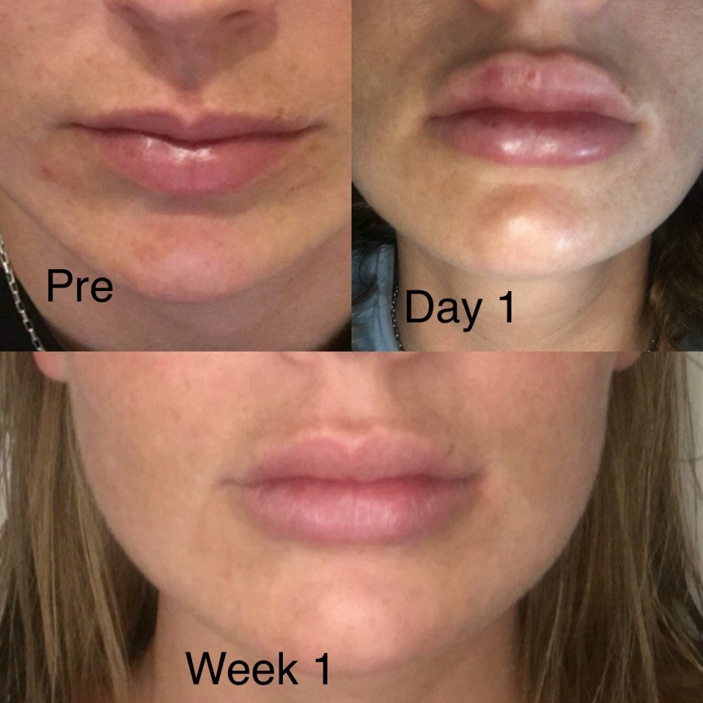 Lip Enhancement and Contouring Perth